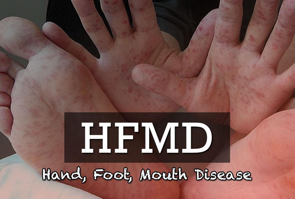 Hand Food Mouth Disease - Farmasi AA Malaysia Health TIps