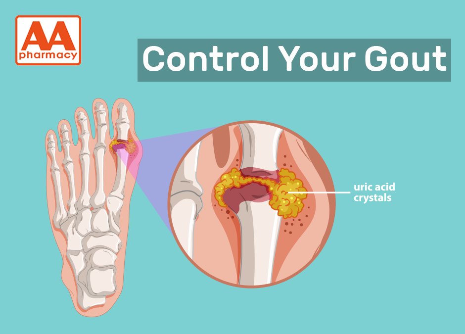 Control Your Gout